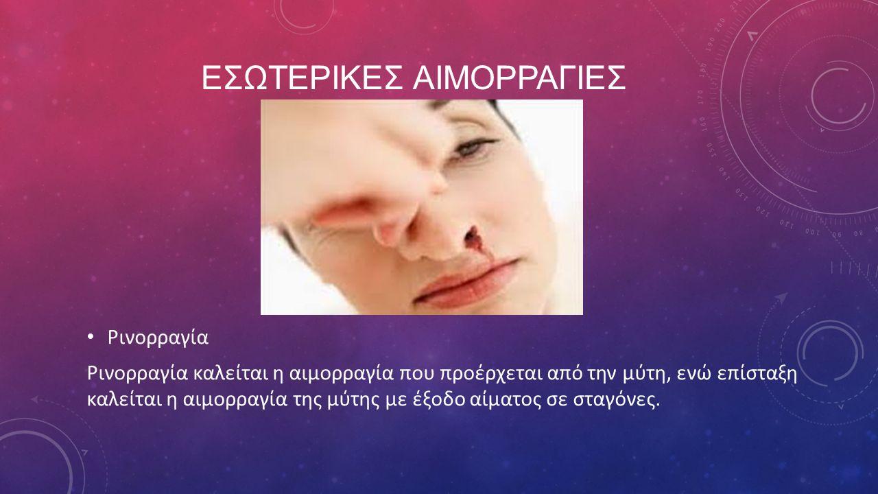 ΕΣΩΤΕΡΙΚΕΣ ΑΙΜΟΡΡΑΓΙΕΣ Ρινορραγία Ρινορραγία καλείται η αιμορραγία που προέρχεται από την μύτη, ενώ επίσταξη καλείται η αιμορραγία της μύτης με έξοδο