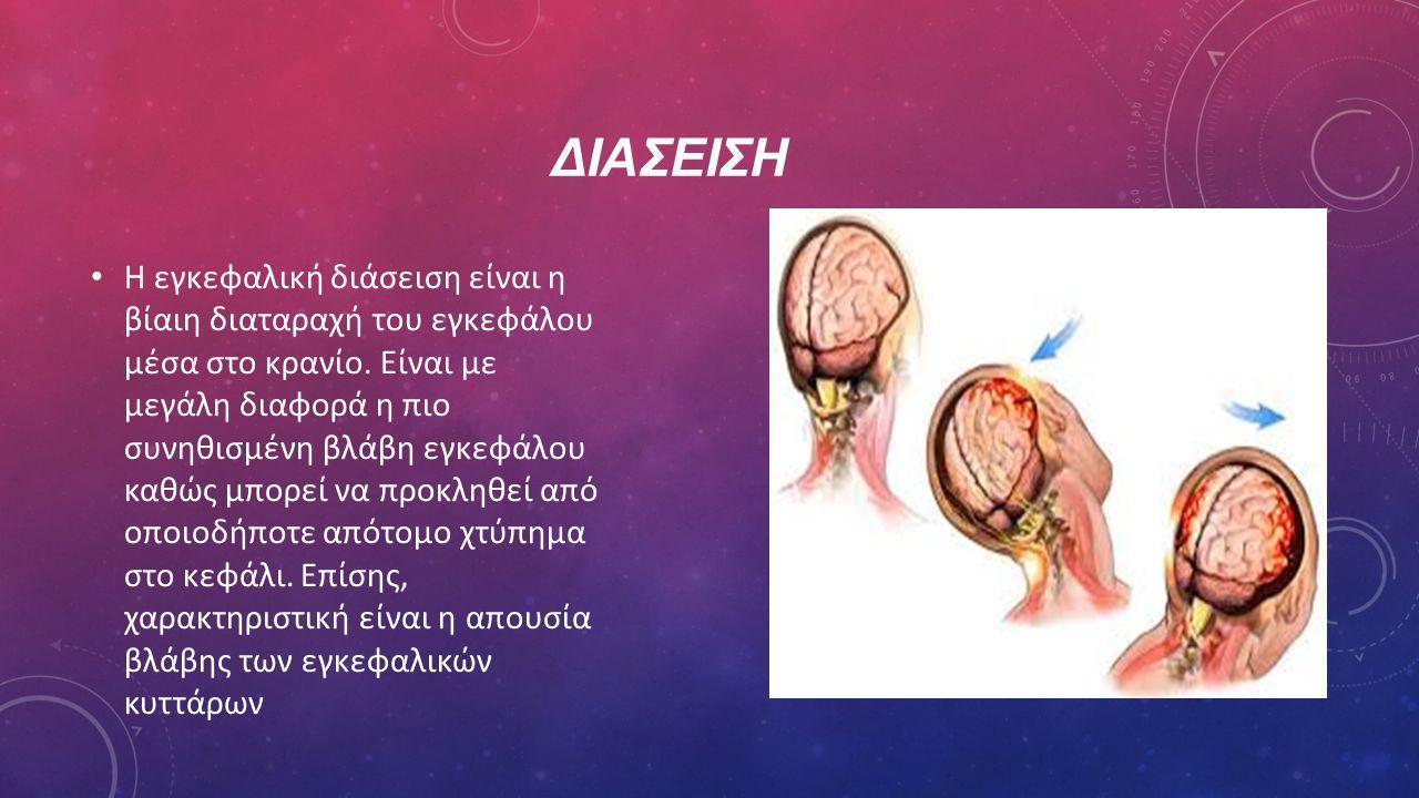 ΔΙΑΣΕΙΣΗ Η εγκεφαλική διάσειση είναι η βίαιη διαταραχή του εγκεφάλου μέσα στο κρανίο. Είναι με μεγάλη διαφορά η πιο συνηθισμένη βλάβη εγκεφάλου καθώς