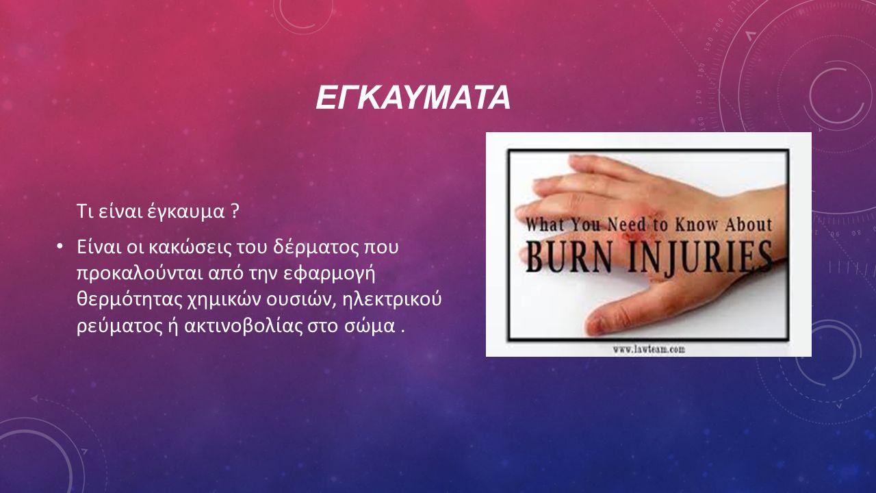 ΕΓΚΑΥΜΑΤΑ Τι είναι έγκαυμα ? Είναι οι κακώσεις του δέρματος που προκαλούνται από την εφαρμογή θερμότητας χημικών ουσιών, ηλεκτρικού ρεύματος ή ακτινοβ