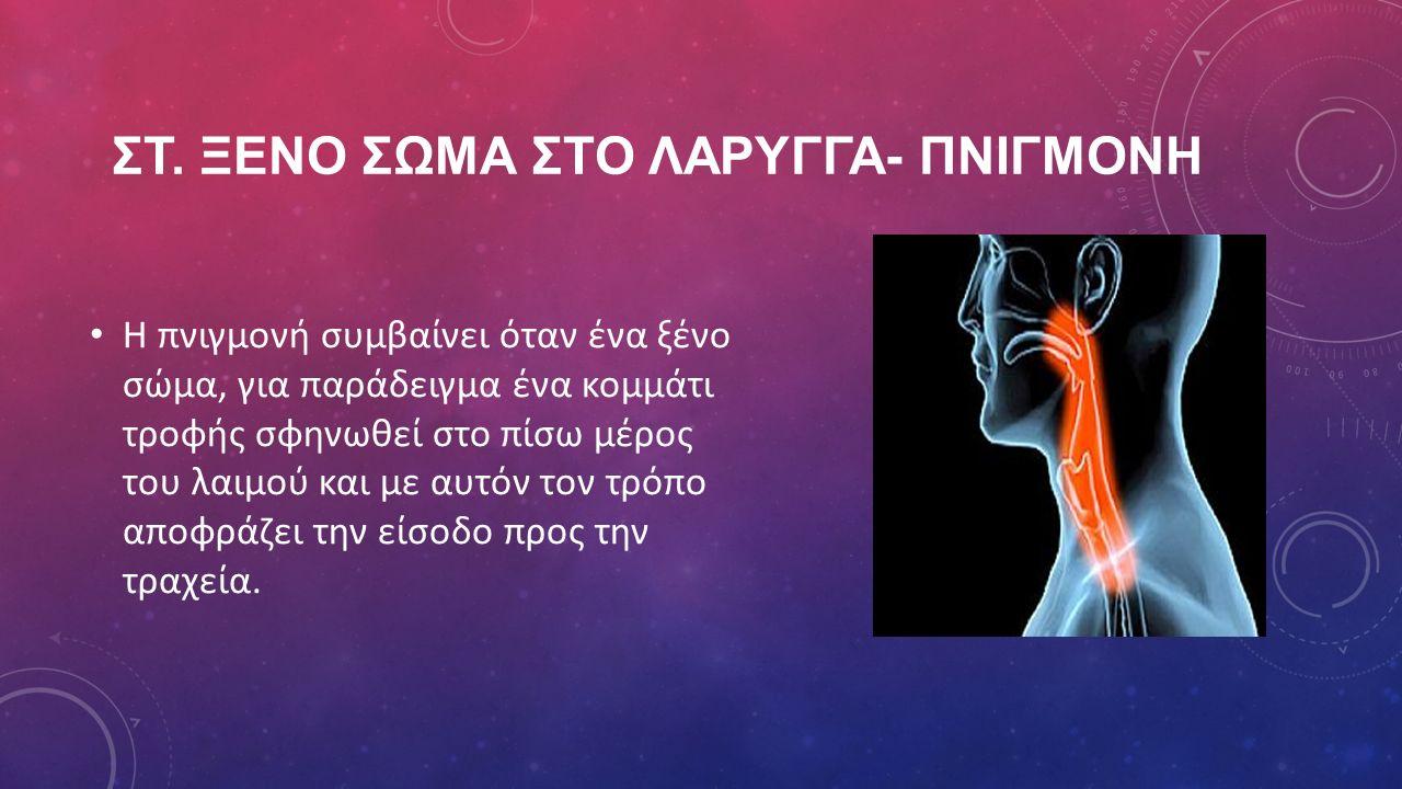 ΣΤ. ΞΕΝΟ ΣΩΜΑ ΣΤΟ ΛΑΡΥΓΓΑ- ΠΝΙΓΜΟΝΗ Η πνιγμονή συμβαίνει όταν ένα ξένο σώμα, για παράδειγμα ένα κομμάτι τροφής σφηνωθεί στο πίσω μέρος του λαιμού και
