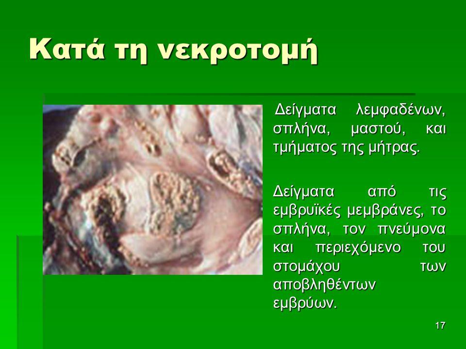 Κατά τη νεκροτομή Δείγματα λεμφαδένων, σπλήνα, μαστού, και τμήματος της μήτρας. Δείγματα λεμφαδένων, σπλήνα, μαστού, και τμήματος της μήτρας.  Δείγμα