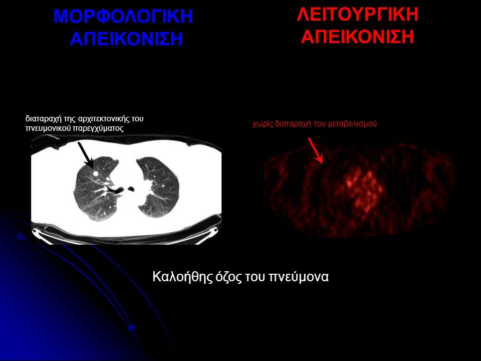 ΜΟΡΦΟΛΟΓΙΚΗ ΑΠΕΙΚΟΝΙΣΗ ΛΕΙΤΟΥΡΓΙΚΗ ΑΠΕΙΚΟΝΙΣΗ Καλοήθης όζος του πνεύμονα χωρίς διαταραχή του μεταβολισμού διαταραχή της αρχιτεκτονικής του πνευμονικού παρεγχύματος