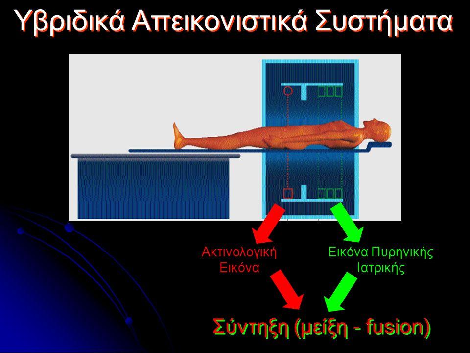 Υβριδικά Απεικονιστικά Συστήματα Εικόνα Πυρηνικής Ιατρικής Ακτινολογική Εικόνα Σύντηξη (μείξη - fusion)