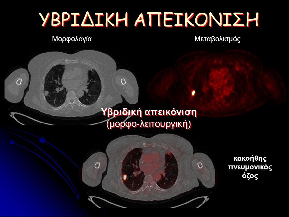 ΥΒΡΙΔΙΚΗ ΑΠΕΙΚΟΝΙΣΗ ΜορφολογίαΜεταβολισμός Υβριδική απεικόνιση (μορφο-λειτουργική) Υβριδική απεικόνιση (μορφο-λειτουργική) κακοήθης πνευμονικός όζος