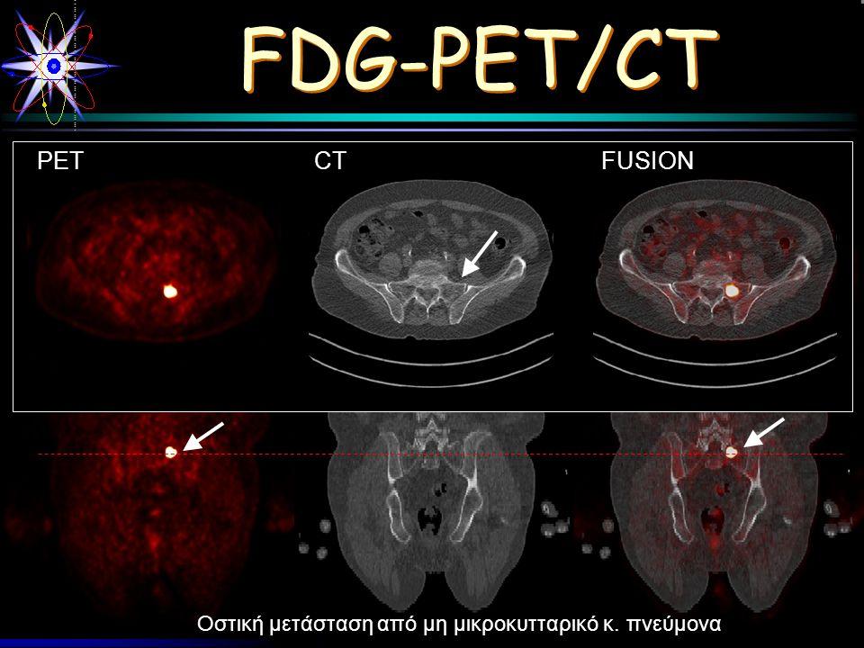 Werly Pauel FDG-PET/CT Οστική μετάσταση από μη μικροκυτταρικό κ. πνεύμονα PETCTFUSION PETCTFUSION