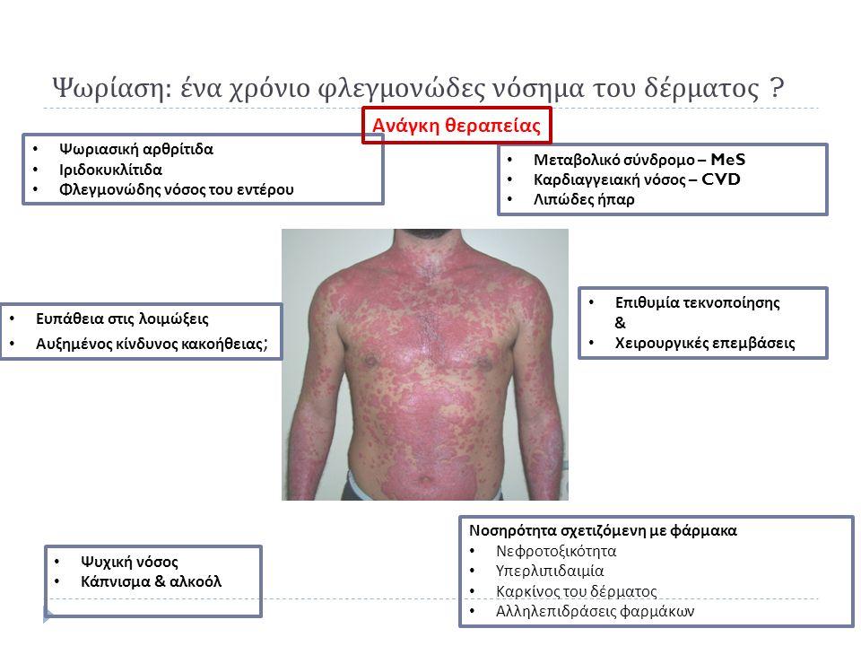 Ψωρίαση : ένα χρόνιο φλεγμονώδες νόσημα του δέρματος ? Ψωριασική αρθρίτιδα Ιριδοκυκλίτιδα Φλεγμονώδης νόσος του εντέρου Μεταβολικό σύνδρομο – MeS Καρδ