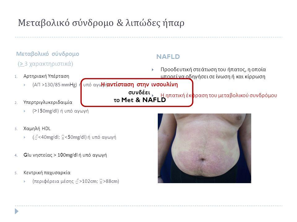 Μεταβολικό σύνδρομο & λιπώδες ήπαρ Μεταβολικό σύνδρομο (> 3 χαρακτηριστικά ) NAFLD 1. Αρτηριακή Υπέρταση  ( ΑΠ >130/85 mmHg) ή υπό αγωγή 2. Υπερτριγλ
