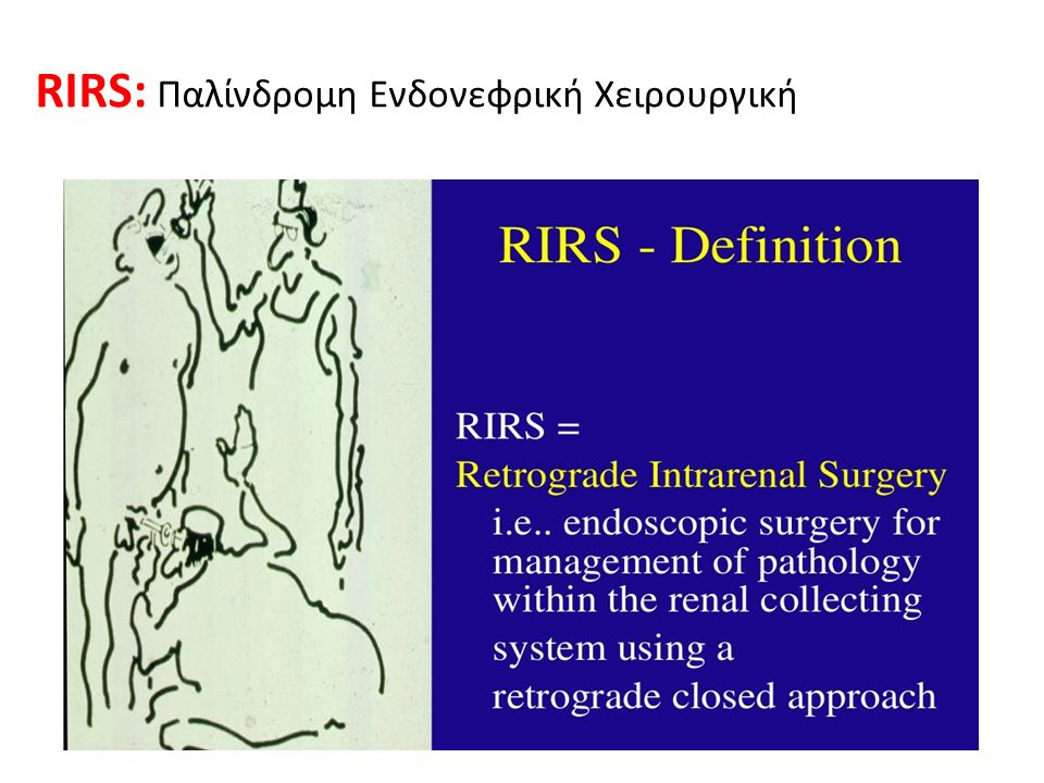 RIRS: Παλίνδρομη Ενδονεφρική Χειρουργική