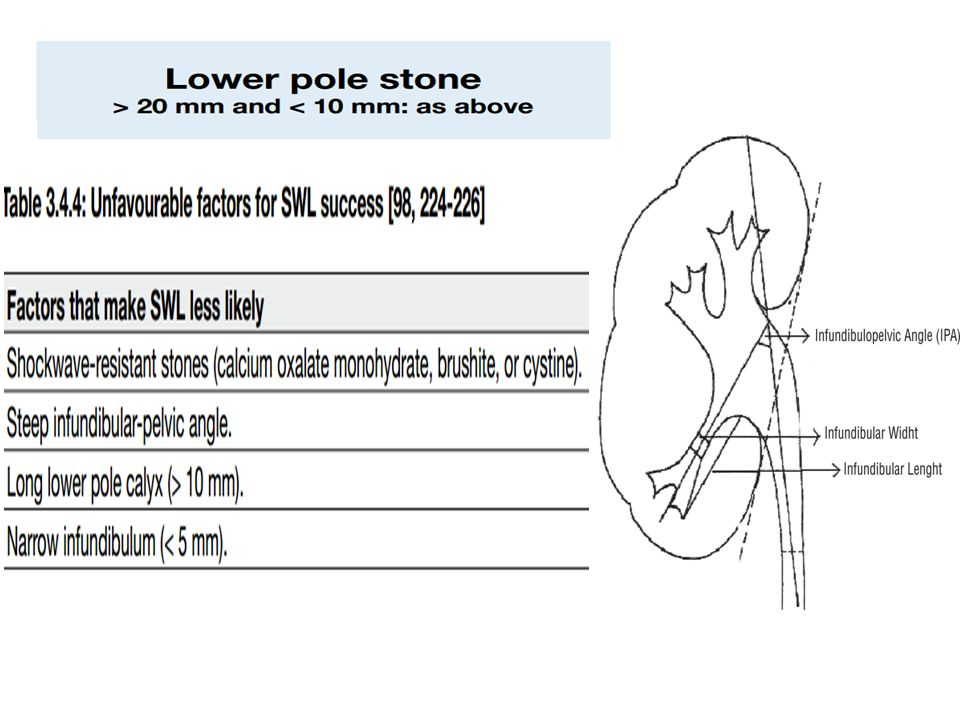 The use of flexible endoscopes during ECIRS contributes to minimizing radiation exposure and hemorrhagic risk ECIRS performed in GMSV position seems to be a safe and effective procedure with a high one-step stone-free rate, unquestionable anaesthesiological advantages and no additional procedure-related complications ECIRS may be considered an evolution of the PNL procedure