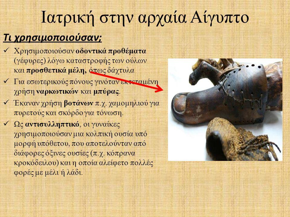 Ιατρική στην αρχαία Αίγυπτο Τι χρησιμοποιούσαν; Χρησιμοποιούσαν οδοντικά προθέματα (γέφυρες) λόγω καταστροφής των ούλων και προσθετικά μέλη, όπως δάχτ