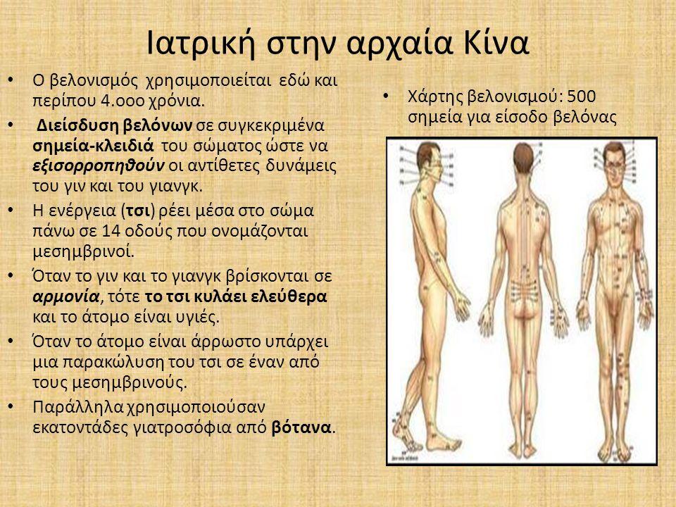 Ιατρική στην αρχαία Κίνα Ο βελονισμός χρησιμοποιείται εδώ και περίπου 4.οοο χρόνια. Διείσδυση βελόνων σε συγκεκριμένα σημεία-κλειδιά του σώματος ώστε