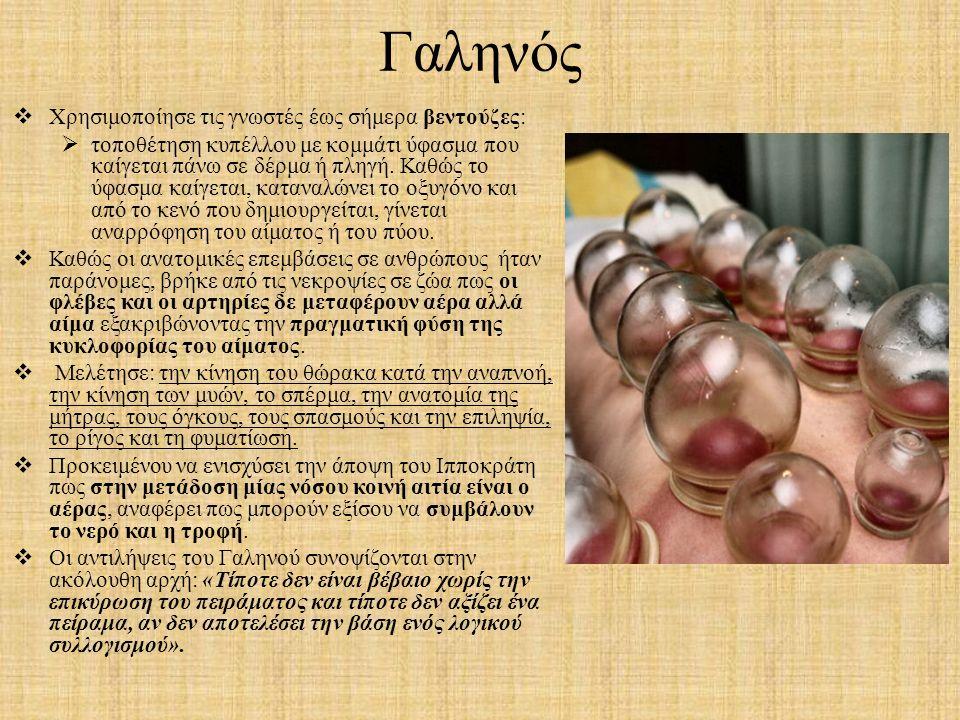 Γαληνός  Χρησιμοποίησε τις γνωστές έως σήμερα βεντούζες:  τοποθέτηση κυπέλλου με κομμάτι ύφασμα που καίγεται πάνω σε δέρμα ή πληγή. Καθώς το ύφασμα