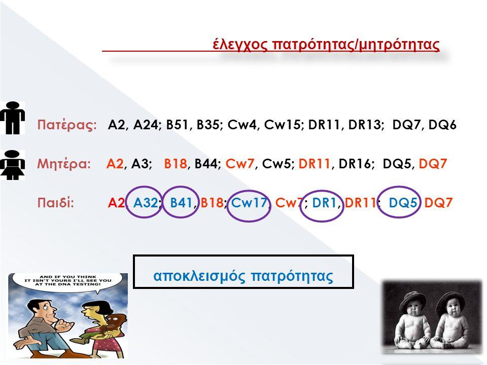 Πατέρας: Α2, Α24; Β51, Β35; Cw4, Cw15; DR11, DR13; DQ7, DQ6 Μητέρα: Α2, Α3; Β18, Β44; Cw7, Cw5; DR11, DR16; DQ5, DQ7 Παιδί: Α2, Α32; Β41, Β18; Cw17, Cw7; DR1, DR11; DQ5, DQ7 αποκλεισμός πατρότητας έλεγχος πατρότητας/μητρότητας