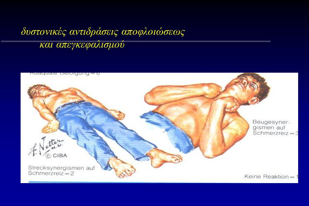 δυστονικές αντιδράσεις αποφλοιώσεως και απεγκεφαλισμού