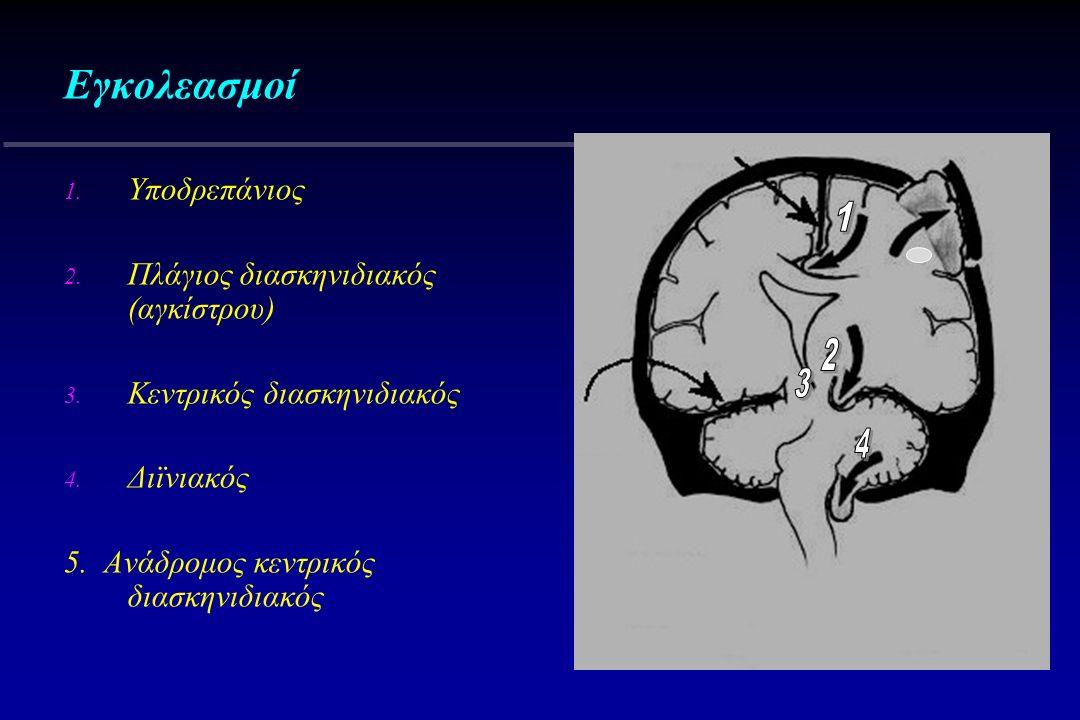 Εγκολεασμοί 1. Υποδρεπάνιος 2. Πλάγιος διασκηνιδιακός (αγκίστρου) 3. Κεντρικός διασκηνιδιακός 4. Διϊνιακός 5. Ανάδρομος κεντρικός διασκηνιδιακός