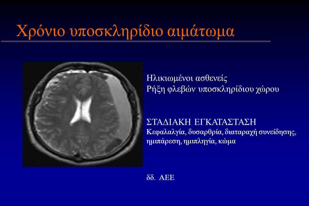 Χρόνιο υποσκληρίδιο αιμάτωμα Ηλικιωμένοι ασθενείς Ρήξη φλεβών υποσκληρίδιου χώρου ΣΤΑΔΙΑΚΗ ΕΓΚΑΤΑΣΤΑΣΗ Κεφαλαλγία, δυσαρθρία, διαταραχή συνείδησης, ημ