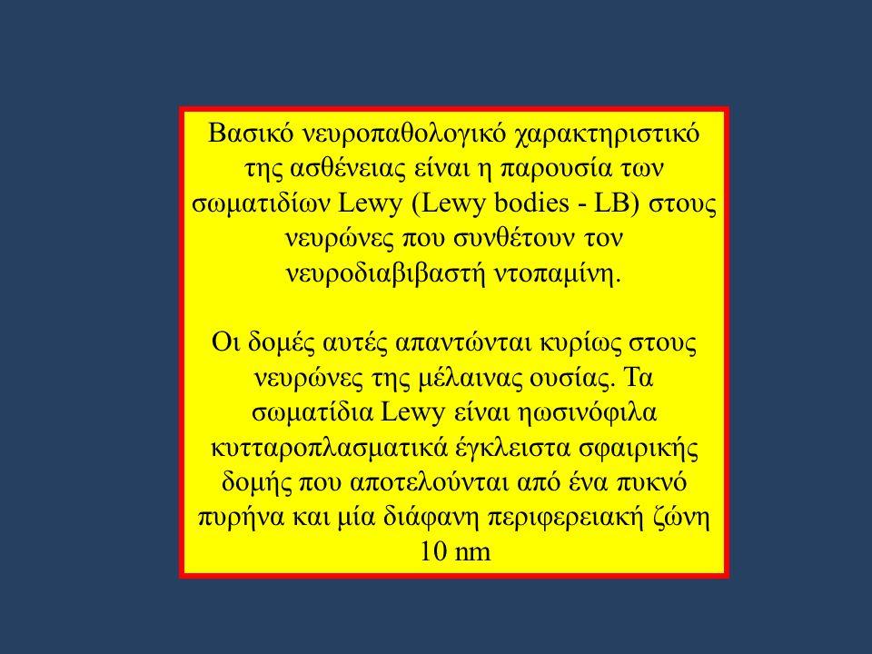 Βασικό νευροπαθολογικό χαρακτηριστικό της ασθένειας είναι η παρουσία των σωματιδίων Lewy (Lewy bodies - LB) στους νευρώνες που συνθέτουν τον νευροδιαβιβαστή ντοπαμίνη.