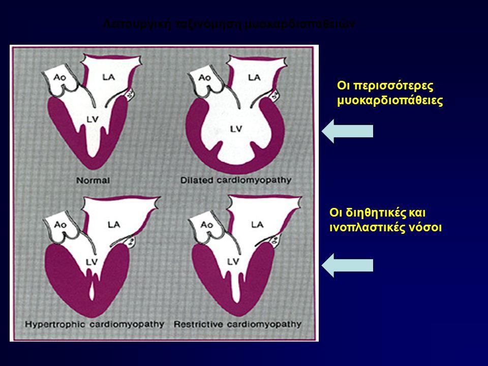 Λειτουργική ταξινόμηση μυοκαρδιοπαθειών Οι περισσότερες μυοκαρδιοπάθειες Οι διηθητικές και ινοπλαστικές νόσοι