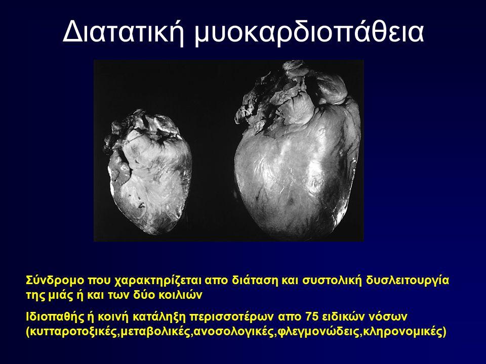 Διατατική μυοκαρδιοπάθεια Σύνδρομο που χαρακτηρίζεται απο διάταση και συστολική δυσλειτουργία της μιάς ή και των δύο κοιλιών Ιδιοπαθής ή κοινή κατάληξη περισσοτέρων απο 75 ειδικών νόσων (κυτταροτοξικές,μεταβολικές,ανοσολογικές,φλεγμονώδεις,κληρονομικές)