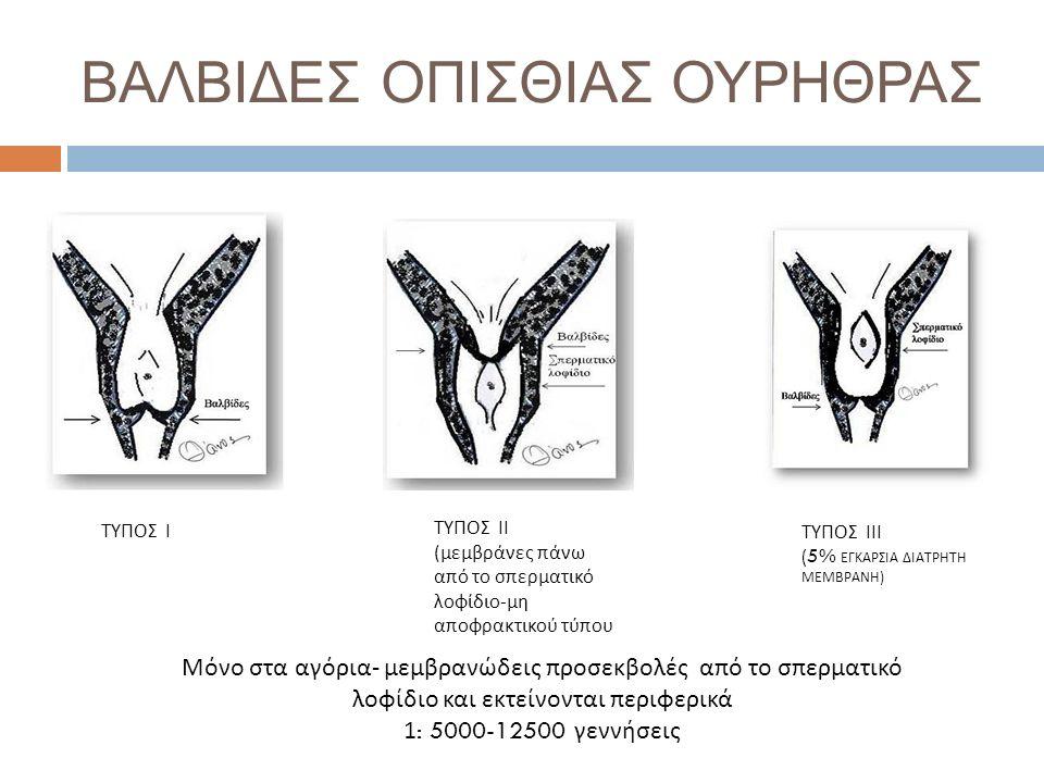 ΒΑΛΒΙΔΕΣ ΟΠΙΣΘΙΑΣ ΟΥΡΗΘΡΑΣ ΤΥΠΟΣ Ι ΤΥΠΟΣ ΙΙ (μεμβράνες πάνω από το σπερματικό λοφίδιο-μη αποφρακτικού τύπου ΤΥΠΟΣ ΙΙΙ (5% ΕΓΚΑΡΣΙΑ ΔΙΑΤΡΗΤΗ ΜΕΜΒΡΑΝΗ ) Μόνο στα αγόρια- μεμβρανώδεις προσεκβολές από το σπερματικό λοφίδιο και εκτείνονται περιφερικά 1 : 5000-12500 γεννήσεις