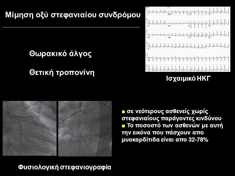 Μίμηση οξύ στεφανιαίου συνδρόμου Φυσιολογική στεφανιογραφία Θωρακικό άλγος Θετική τροπονίνη Ισχαιμικό ΗΚΓ ■ σε νεότερους ασθενείς χωρίς στεφανιαίους παράγοντες κινδύνου ■ Το ποσοστό των ασθενών με αυτή την εικόνα που πάσχουν απο μυοκαρδίτιδα είναι απο 32-78%