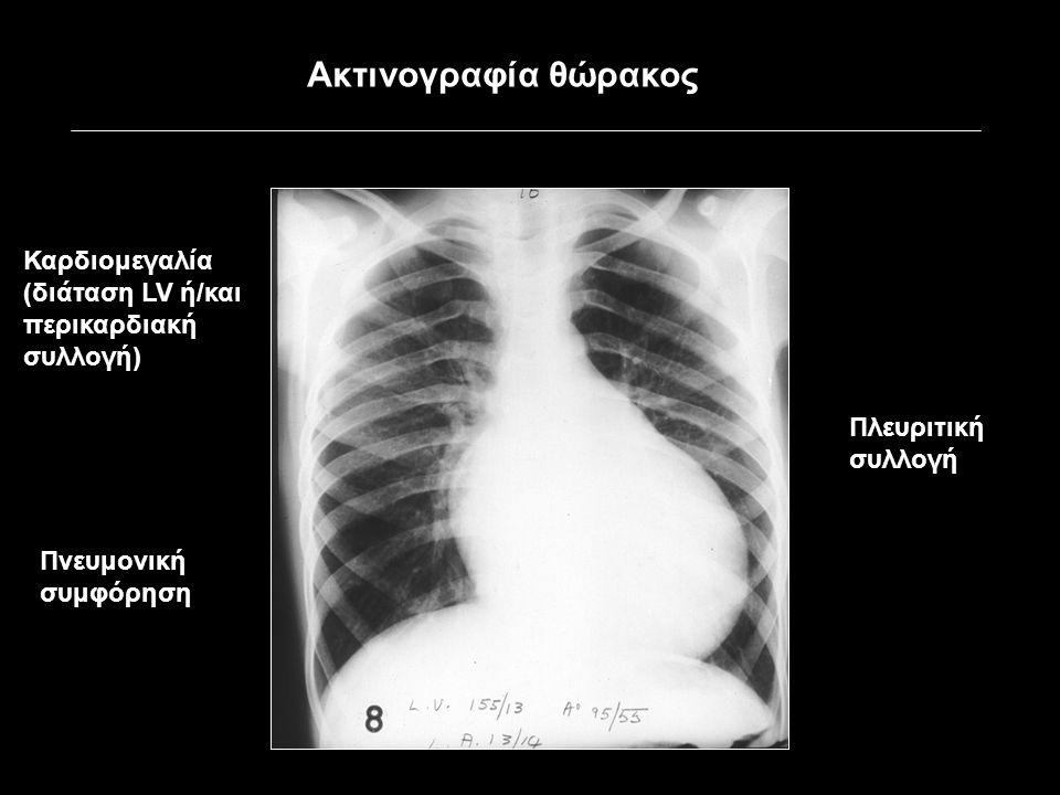 Καρδιομεγαλία (διάταση LV ή/και περικαρδιακή συλλογή) Πνευμονική συμφόρηση Πλευριτική συλλογή Ακτινογραφία θώρακος