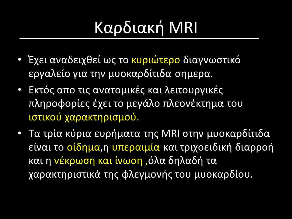 Καρδιακή MRI Έχει αναδειχθεί ως το κυριώτερο διαγνωστικό εργαλείο για την μυοκαρδίτιδα σημερα.