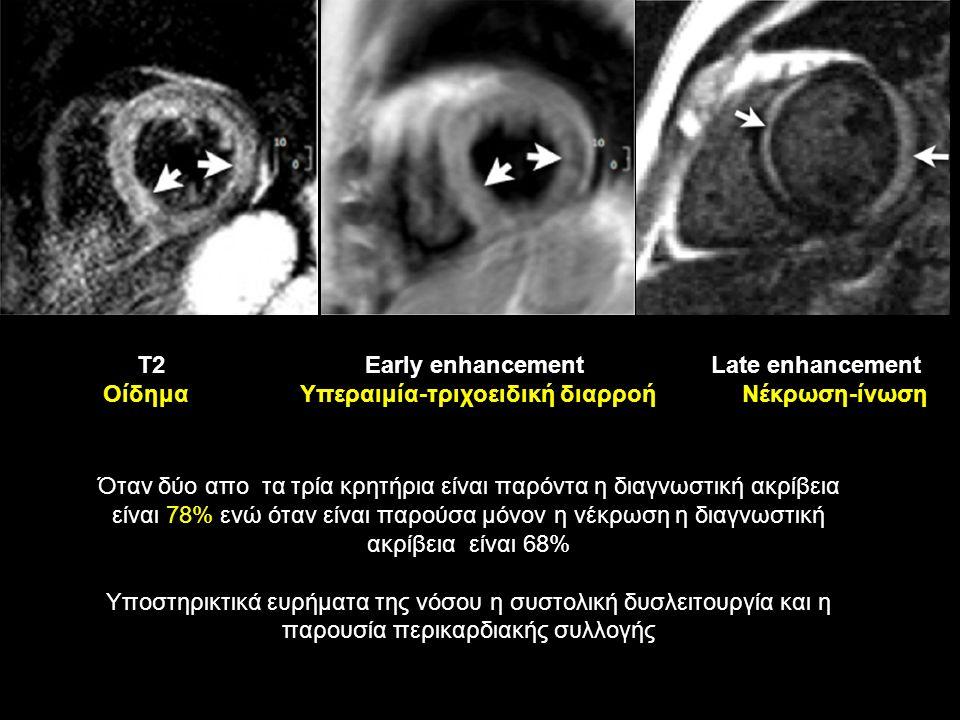 Τ2 Early enhancement Late enhancement Οίδημα Υπεραιμία-τριχοειδική διαρροή Νέκρωση-ίνωση Όταν δύο απο τα τρία κρητήρια είναι παρόντα η διαγνωστική ακρίβεια είναι 78% ενώ όταν είναι παρούσα μόνον η νέκρωση η διαγνωστική ακρίβεια είναι 68% Υποστηρικτικά ευρήματα της νόσου η συστολική δυσλειτουργία και η παρουσία περικαρδιακής συλλογής