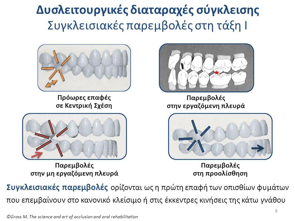 Κεντρική σχέση γνάθων πρόωρες επαφές – ολίσθηση της κάτω γνάθου Πρώτη οδοντική επαφή σε ΚΣ Ολίσθηση της κάτω γνάθου σε ΜΣ Αν κατά τη στιγμή της σύγκλεισης των δοντιών, παρεμβληθεί μια πρώτη επαφή ενός πίσω δοντιού, τότε η κάτω γνάθος παρεκκλίνει από το τόξο της ΚΣ και η σύγκλειση σε μεγίστη συναρμογή (ΜΣ) γίνεται σε μια έκκεντρη θέση με ολίσθηση της κάτω γνάθου προς τα πλάγια ή και εμπρός (οριζόντιο και κάθετο επίπεδο).