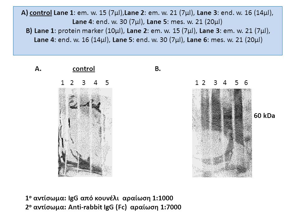 Α) control Lane 1: em. w. 15 (7μl),Lane 2: em. w. 21 (7μl), Lane 3: end. w. 16 (14μl), Lane 4: end. w. 30 (7μl), Lane 5: mes. w. 21 (20μl) Β) Lane 1:
