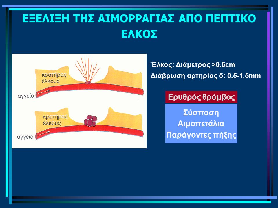 Διάμετρος αγγείου PH Πεψίνη ΕΞΕΛΙΞΗ ΤΗΣ ΑΙΜΟΡΡΑΓΙΑΣ ΑΠΟ ΠΕΠΤΙΚΟ ΕΛΚΟΣ Έλκος: Διάμετρος >0.5cm Διάβρωση αρτηρίας δ: 0.5-1.5mm Ερυθρός θρόμβος Σύσπαση Αιμοπετάλια Παράγοντες πήξης