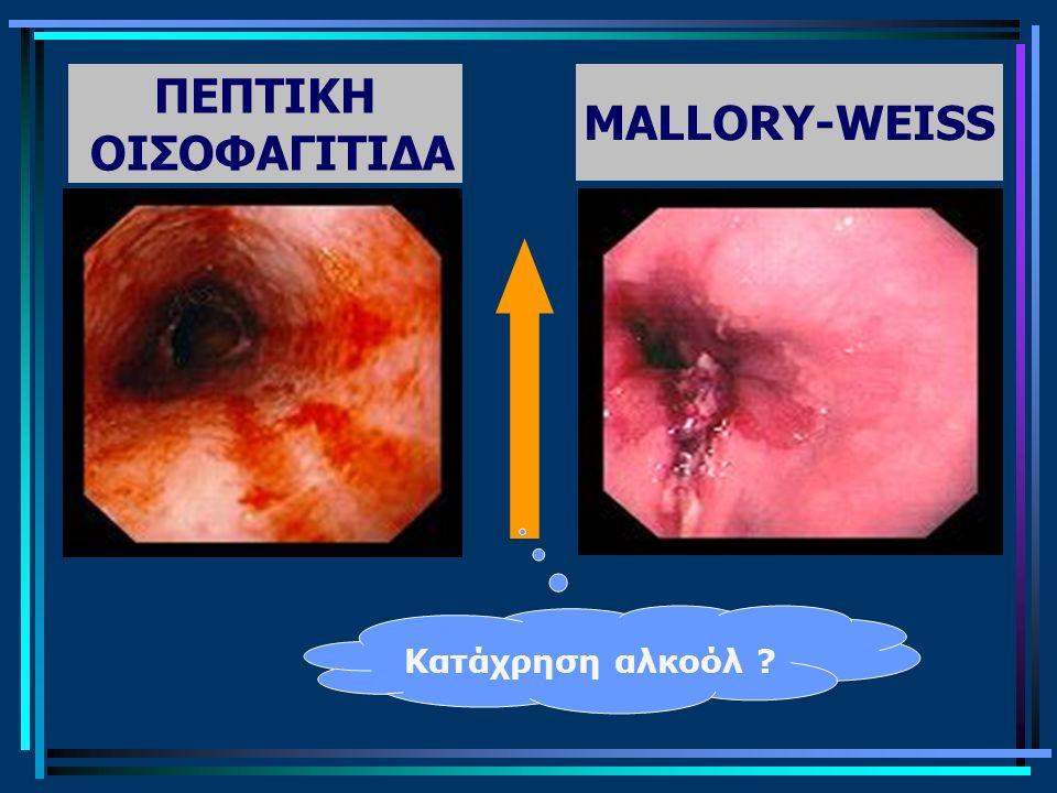 ΠΕΠΤΙΚΗ ΟΙΣΟΦΑΓΙΤΙΔΑ MALLORY-WEISS Κατάχρηση αλκοόλ