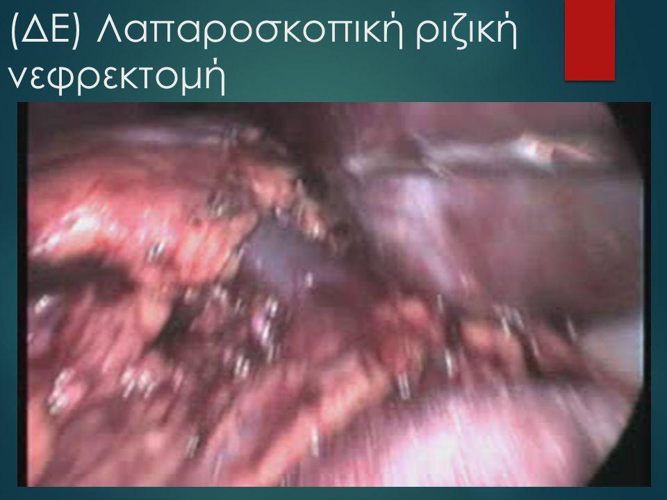 (ΔΕ) Λαπαροσκοπική ριζική νεφρεκτομή