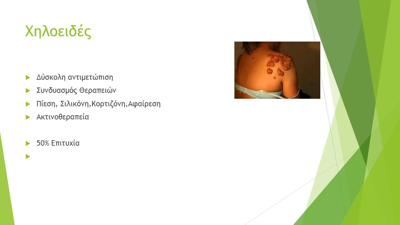 Χηλοειδές  Δύσκολη αντιμετώπιση  Συνδυασμός Θεραπειών  Πίεση, Σιλικόνη,Κορτιζόνη,Αφαίρεση  Ακτινοθεραπεία  50% Επιτυχία 