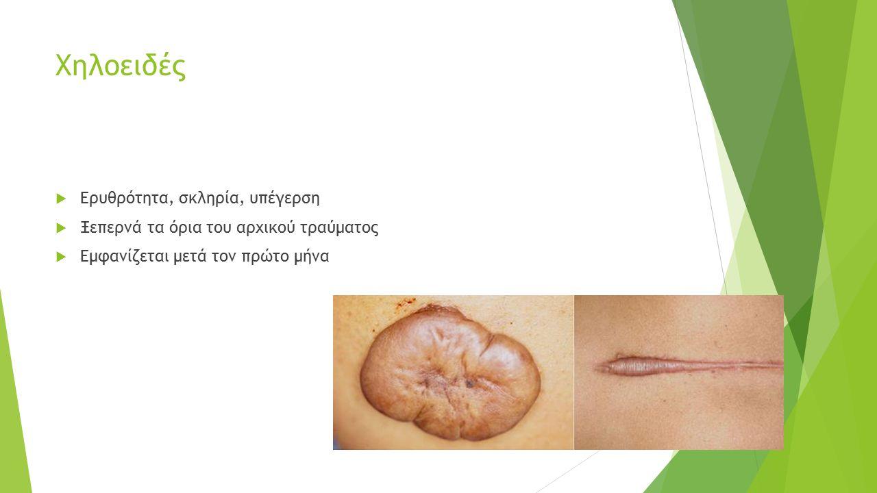 Άλλες Θεραπείες  Ακτινοθεραπεία  Κρυοθεραπεία (50-74%)  Laser (Carbon dioxide, argon laser,  Nd:YAG laser, Pulse dye)- (50-70 %)