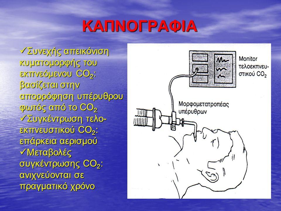 ΚΑΠΝΟΓΡΑΦΙΑ Συνεχής απεικόνιση κυματομορφής του εκπνεόμενου CO 2 : βασίζεται στην απορρόφηση υπέρυθρου φωτός από το CO 2 Συνεχής απεικόνιση κυματομορφής του εκπνεόμενου CO 2 : βασίζεται στην απορρόφηση υπέρυθρου φωτός από το CO 2 Συγκέντρωση τελο- εκπνευστικού CO 2 : επάρκεια αερισμού Συγκέντρωση τελο- εκπνευστικού CO 2 : επάρκεια αερισμού Μεταβολές συγκέντρωσης CO 2 : ανιχνεύονται σε πραγματικό χρόνο Μεταβολές συγκέντρωσης CO 2 : ανιχνεύονται σε πραγματικό χρόνο