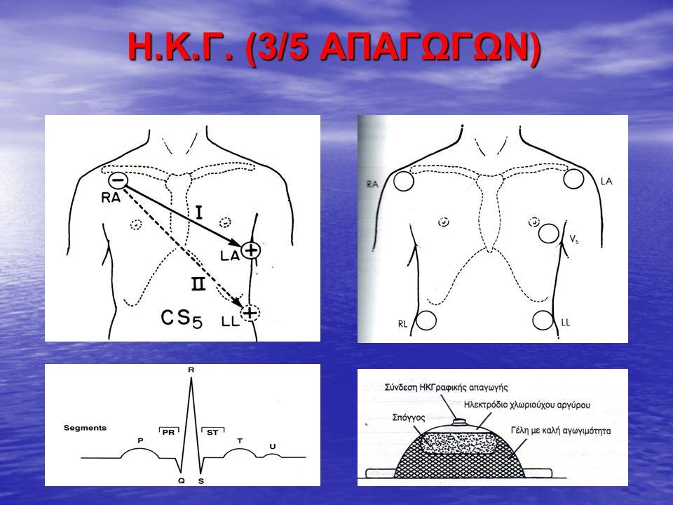 Η.Κ.Γ.(2) Συνεχής Η.Κ.Γραφικός έλεγχος στους ασθενείς: Συνεχής Η.Κ.Γραφικός έλεγχος στους ασθενείς: - με ιστορικό αρρυθμιών ή Ο.Ε.Μ., - με ιστορικό αρρυθμιών ή Ο.Ε.Μ., - με υψηλό κίνδυνο αιμορραγίας ή ηλεκτρολυτικών διαταραχών, - με υψηλό κίνδυνο αιμορραγίας ή ηλεκτρολυτικών διαταραχών, - μετά από καρδιοχειρουργική επέμβαση - μετά από καρδιοχειρουργική επέμβαση Πλασματικές τιμές μετρήσεων (artifacts) στο Η.Κ.Γ.: Πλασματικές τιμές μετρήσεων (artifacts) στο Η.Κ.Γ.: - Ανεπαρκής μείωση αντίστασης δέρματος (αφαίρεση τριχών, καθαρισμός δέρματος με αλκοόλη), ανεπαρκής αγωγιμότητα ηλεκτροδίων (εφαρμογή gel, πλήρης επικόλληση στο δέρμα), - Ανεπαρκής μείωση αντίστασης δέρματος (αφαίρεση τριχών, καθαρισμός δέρματος με αλκοόλη), ανεπαρκής αγωγιμότητα ηλεκτροδίων (εφαρμογή gel, πλήρης επικόλληση στο δέρμα), - Ρίγος, διέγερση ασθενή - τα ηλεκτρικά παράσιτα μειώνονται με την τοποθέτηση των ηλεκτροδίων πάνω από οστέινες προεξοχές - Ρίγος, διέγερση ασθενή - τα ηλεκτρικά παράσιτα μειώνονται με την τοποθέτηση των ηλεκτροδίων πάνω από οστέινες προεξοχές - Φθορές συνέχειας/ γείωσης καλωδίων των συνδέσεων - απαιτείται αντικατάσταση - Φθορές συνέχειας/ γείωσης καλωδίων των συνδέσεων - απαιτείται αντικατάσταση - Παρεμβολές ηλεκτρομαγνητικής ακτινοβολίας από άλλες συσκευές (αντλίες υγρών, ηλεκτρικές κουβέρτες) - Παρεμβολές ηλεκτρομαγνητικής ακτινοβολίας από άλλες συσκευές (αντλίες υγρών, ηλεκτρικές κουβέρτες) - Μέτρηση της καρδιακής συχνότητας από το Η.Κ.Γ.