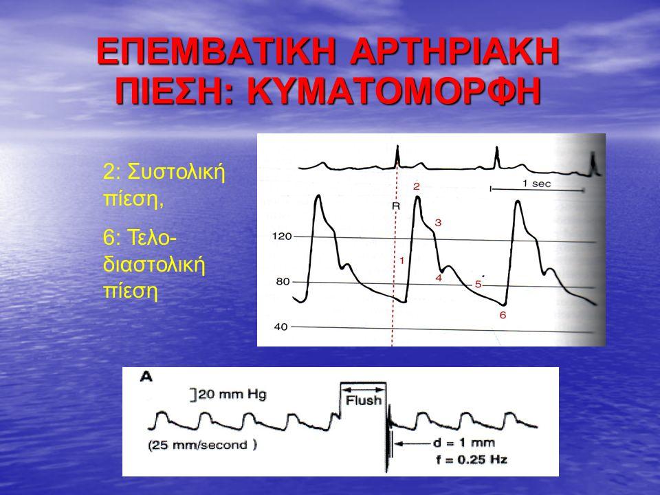 ΕΠΕΜΒΑΤΙΚΗ ΑΡΤΗΡΙΑΚΗ ΠΙΕΣΗ: ΤΙ ΠΡΟΣΕΧΟΥΜΕ Από αρτηριακή γραμμή χορηγείται αποκλειστικά N/S, ποτέ κάποιο φάρμακο Από αρτηριακή γραμμή χορηγείται αποκλειστικά N/S, ποτέ κάποιο φάρμακο Μακροχρόνια παραμονή: συνεπάγεται υψηλό κίνδυνο ενδαγγειακής λοίμωξης ή θρόμβωσης/απόφραξης Μακροχρόνια παραμονή: συνεπάγεται υψηλό κίνδυνο ενδαγγειακής λοίμωξης ή θρόμβωσης/απόφραξης Απαιτείται συχνός ηπαρινισμός της γραμμής (απομάκρυνση φυσαλίδων, θρόμβων – βαθμονόμηση) Απαιτείται συχνός ηπαρινισμός της γραμμής (απομάκρυνση φυσαλίδων, θρόμβων – βαθμονόμηση) Αιτίες artifacts: Αιτίες artifacts: - φυσαλίδες αέρα στο σύστημα: αύξηση απόσβεσης, - ακατάλληλο ύψος μορφομετατροπέα (πάνω ή κάτω από το επίπεδο της καρδιάς), - επιπέδωση κυματομορφής: όταν η άκρη του καθετήρα εφάπτεται στο τοίχωμα του αγγείου