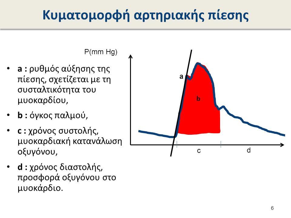 Νοσηλευτική παρακολούθηση (1 από 2) Από αρτηριακή γραμμή χορηγείται αποκλειστικά N/S, ποτέ κάποιο φάρμακο.