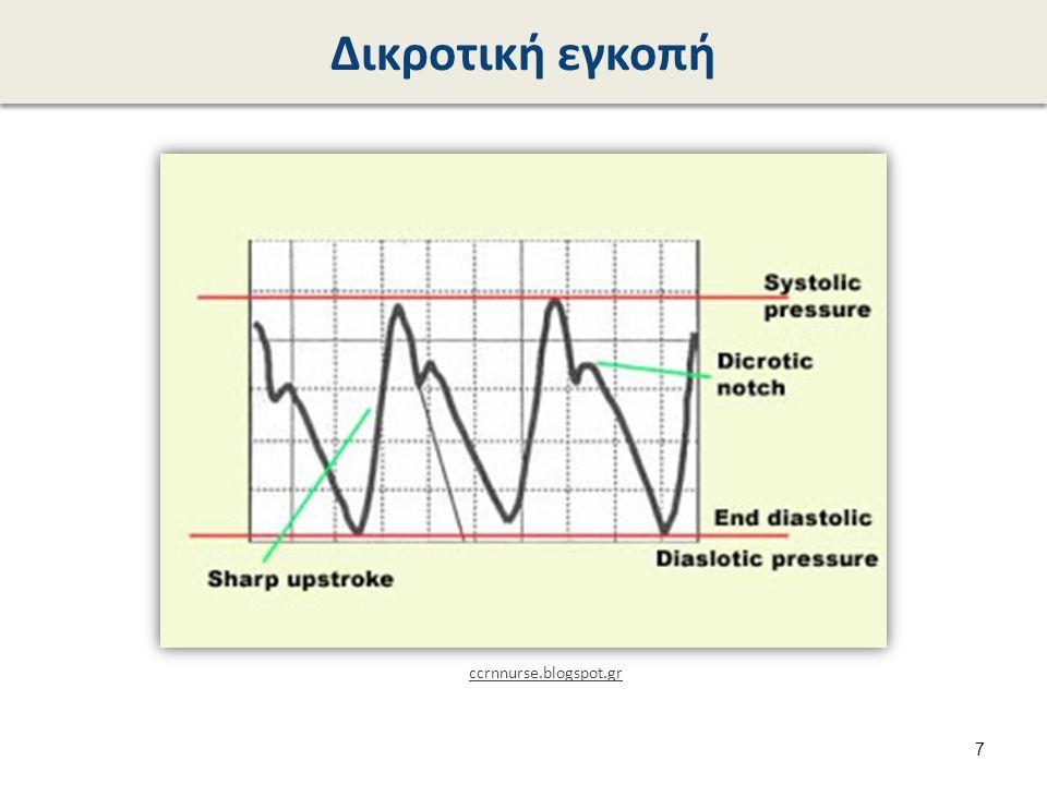ΗΚΓ και κυματομορφή αρτηριακής πίεσης blog.naver.com 8
