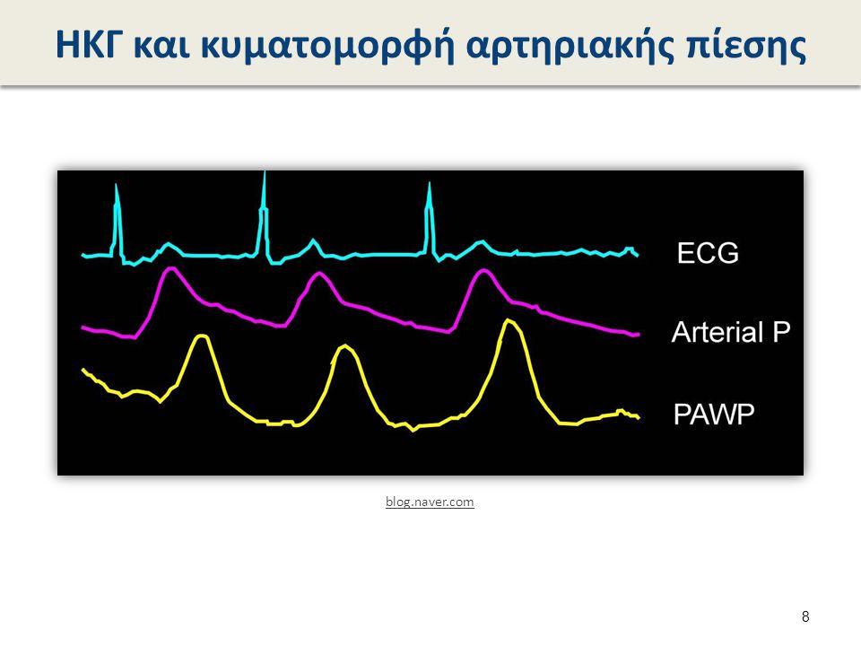 Αέρια αίματος  pH = …  pCO2 = …...mm Hg  pO2 = …… mm Hg  HCO3 = …..