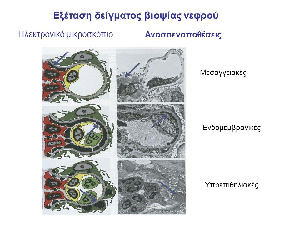 Εξέταση δείγματος βιοψίας νεφρού Ηλεκτρονικό μικροσκόπιο Ανοσοεναποθέσεις Μεσαγγειακές Ενδομεμβρανικές Υποεπιθηλιακές