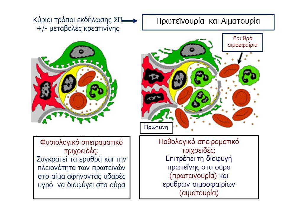 Κύριοι τρόποι εκδήλωσης ΣΠ +/- μεταβολές κρεατινίνης Ερυθρά αιμοσφαίρια Πρωτεϊνουρία και Αιματουρία Φυσιολογικό σπειραματικό τριχοειδές: Συγκρατεί τα ερυθρά και την πλειονότητα των πρωτεϊνών στο αίμα αφήνοντας υδαρές υγρό να διαφύγει στα ούρα Παθολογικό σπειραματικό τριχοειδές: Επιτρέπει τη διαφυγή πρωτεΐνης στα ούρα (πρωτεϊνουρία) και ερυθρών αιμοσφαιρίων (αιματουρία) Πρωτεϊνη