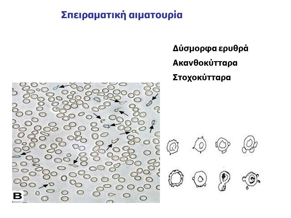 Σπειραματική αιματουρία Δύσμορφα ερυθρά Ακανθοκύτταρα Στοχοκύτταρα