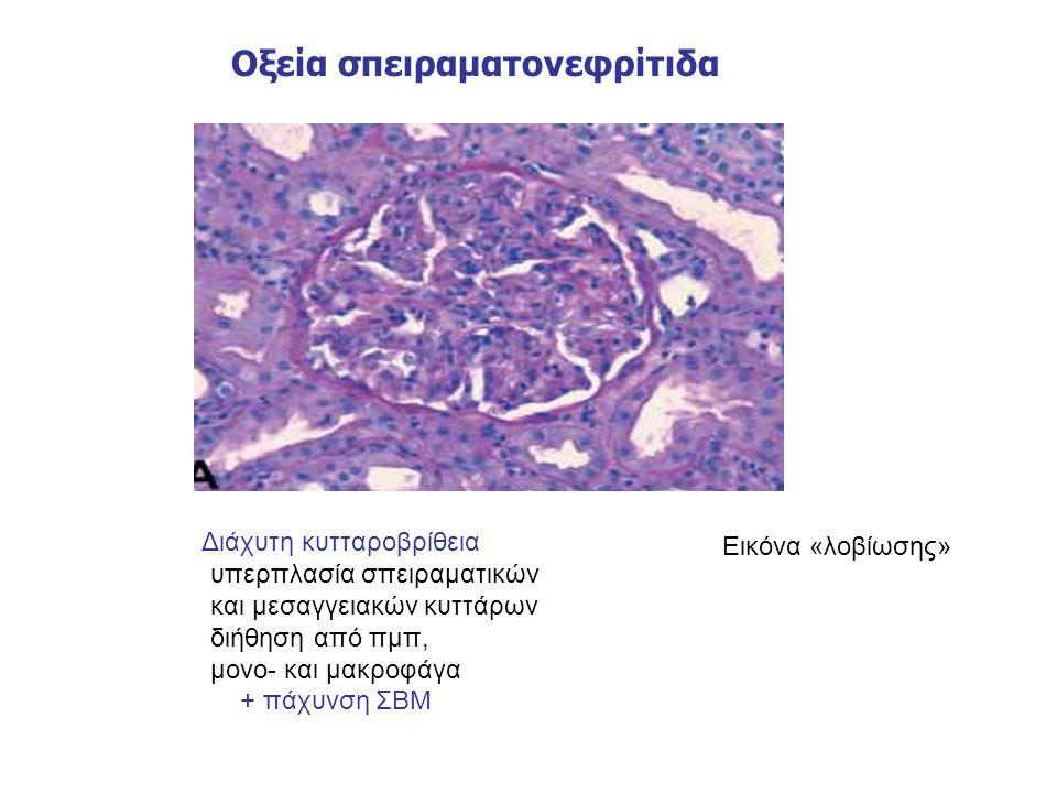 Οξεία σπειραματονεφρίτιδα Διάχυτη κυτταροβρίθεια υπερπλασία σπειραματικών και μεσαγγειακών κυττάρων διήθηση από πμπ, μονο- και μακροφάγα + πάχυνση ΣΒΜ Εικόνα «λοβίωσης»