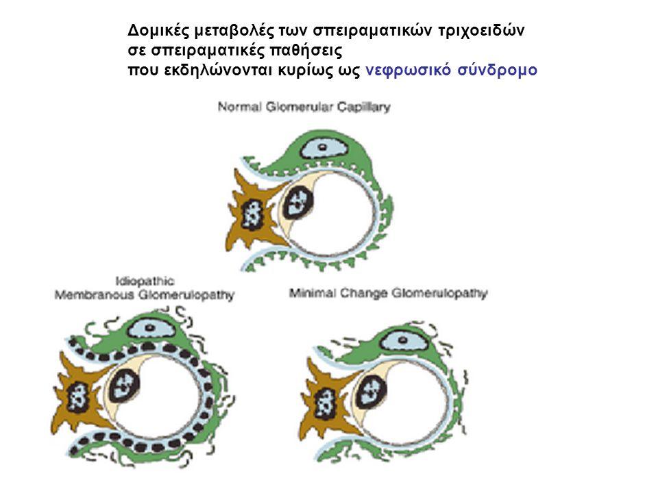 Δομικές μεταβολές των σπειραματικών τριχοειδών σε σπειραματικές παθήσεις που εκδηλώνονται κυρίως ως νεφρωσικό σύνδρομο