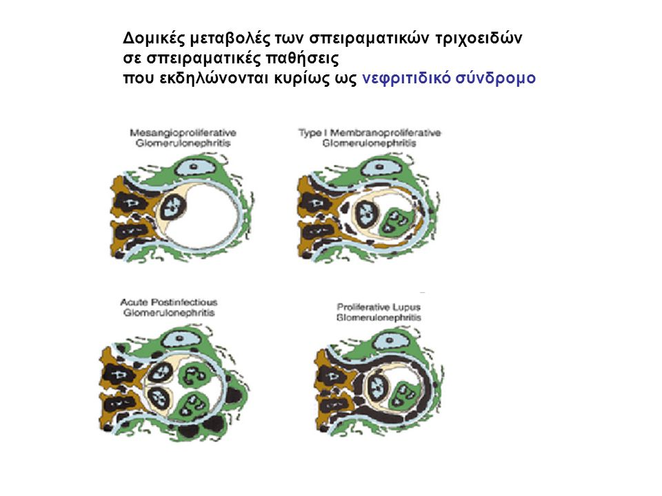 Δομικές μεταβολές των σπειραματικών τριχοειδών σε σπειραματικές παθήσεις που εκδηλώνονται κυρίως ως νεφριτιδικό σύνδρομο