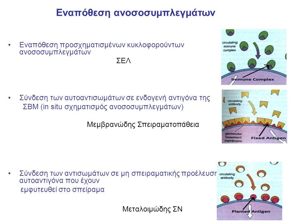 Εναπόθεση προσχηματισμένων κυκλοφορούντων ανοσοσυμπλεγμάτων ΣΕΛ Σύνδεση των αυτοαντισωμάτων σε ενδογενή αντιγόνα της ΣΒΜ (in situ σχηματισμός ανοσοσυμπλεγμάτων) Μεμβρανώδης Σπειραματοπάθεια Σύνδεση των αντισωμάτων σε μη σπειραματικής προέλευσης αυτοαντιγόνα που έχουν εμφυτευθεί στο σπείραμα Μεταλοιμώδης ΣΝ Εναπόθεση ανοσοσυμπλεγμάτων