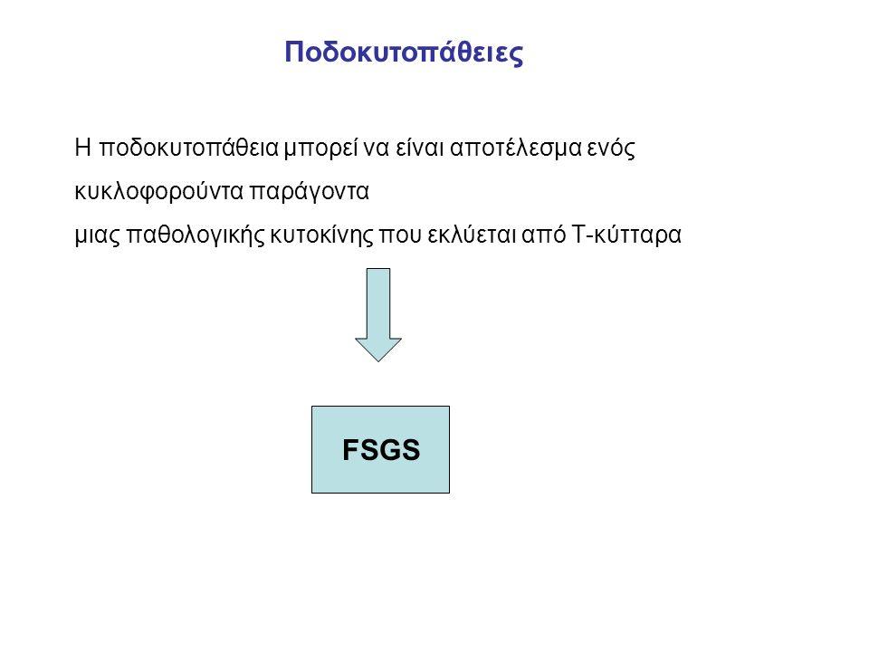 H ποδοκυτοπάθεια μπορεί να είναι αποτέλεσμα ενός κυκλοφορούντα παράγοντα μιας παθολογικής κυτοκίνης που εκλύεται από Τ-κύτταρα Ποδοκυτοπάθειες FSGS