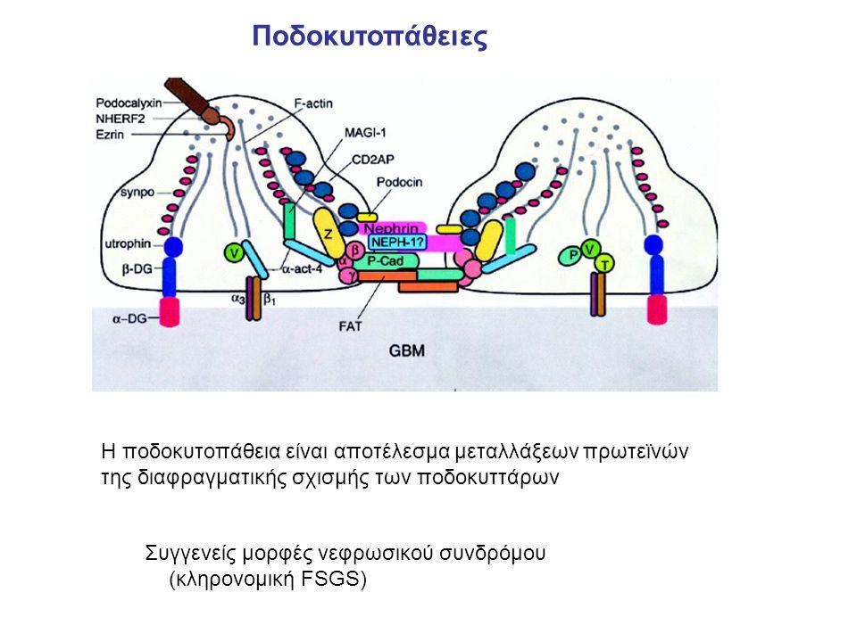 Η ποδοκυτοπάθεια είναι αποτέλεσμα μεταλλάξεων πρωτεϊνών της διαφραγματικής σχισμής των ποδοκυττάρων Ποδοκυτοπάθειες Συγγενείς μορφές νεφρωσικού συνδρόμου (κληρονομική FSGS)